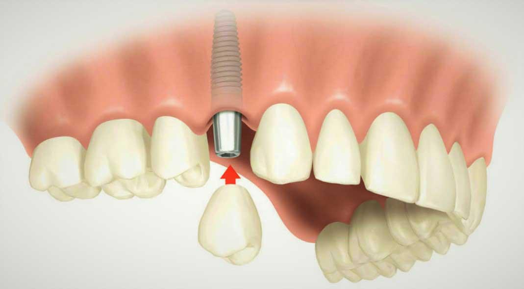 Имплантация зубов в Москве под ключ