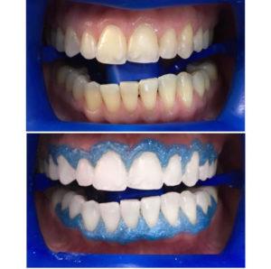 Отбеливание зубов в Москве - Ваодент